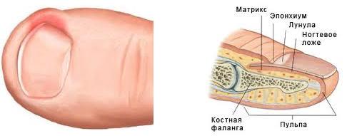 Народные средства лечения грибка на руках между пальцами